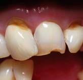 Desgastes en Cuellos Dentales